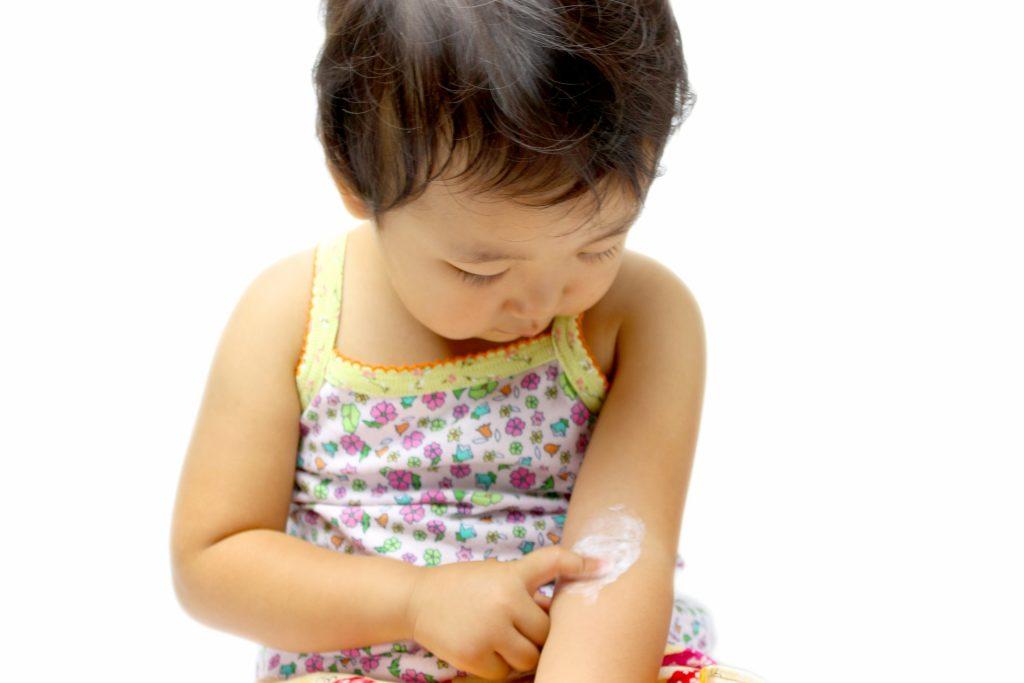 子供の乾燥肌